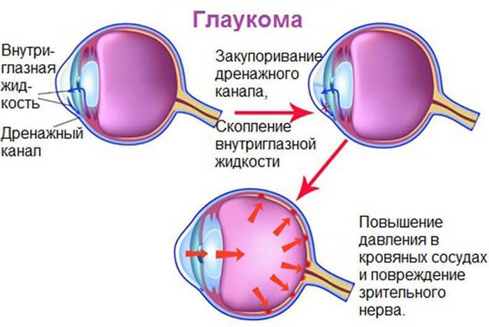 иридэктомия при глаукоме