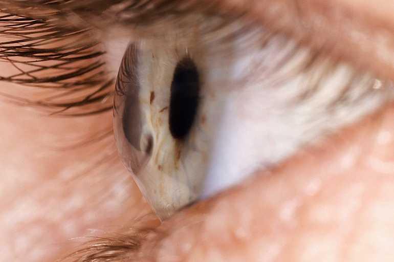 Кератоконус - дегенеративное невоспалительное заболевание глаза
