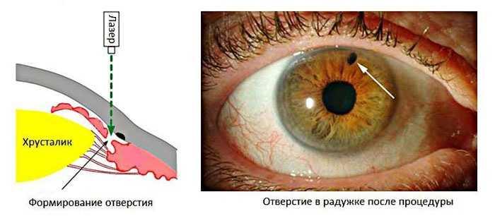 Иридэктомия - Лазерное вмешательство