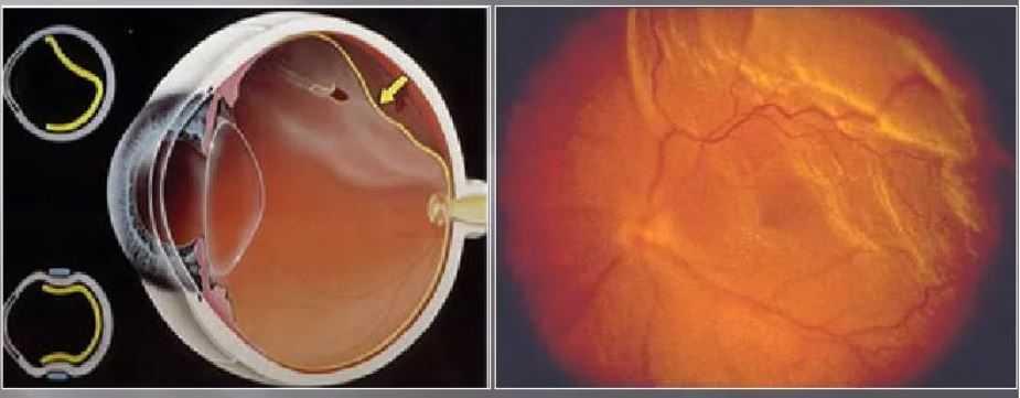 Регматогенная отслойка сетчатки глаза.