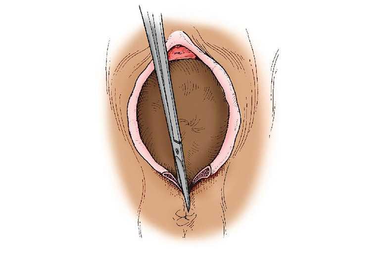 Техника выполнения операции