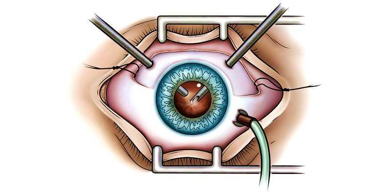 оперативное вмешательство при лечении отслоения сетчатки глаза