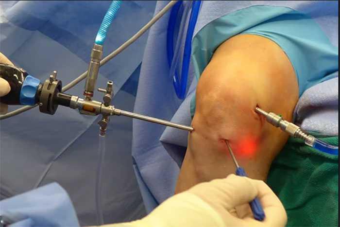 Атроскопия при операции на коленном суставе