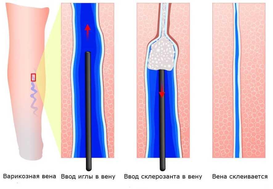 Склеротерапия - схема проведения
