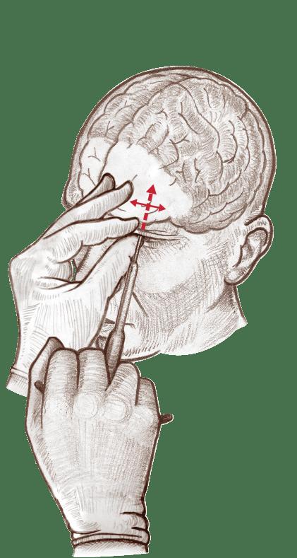 Лоботомия через глазницу
