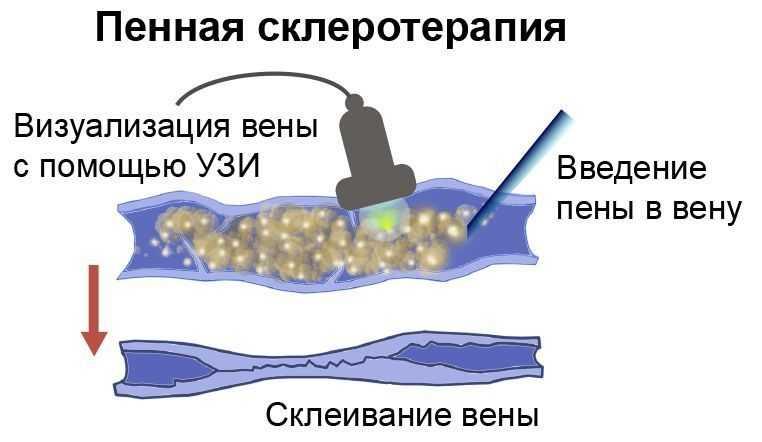 """""""Пенная"""